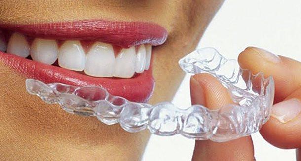 Clinica Stomatologica Velvet Dental Rezultatul inovaţiei - aparatul dentar Invisalign