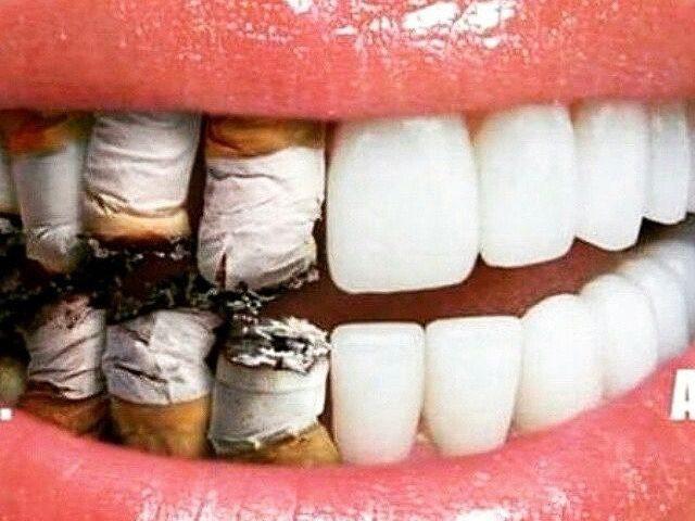Clinica Stomatologica Velvet Dental Fumatul si boala parodontala