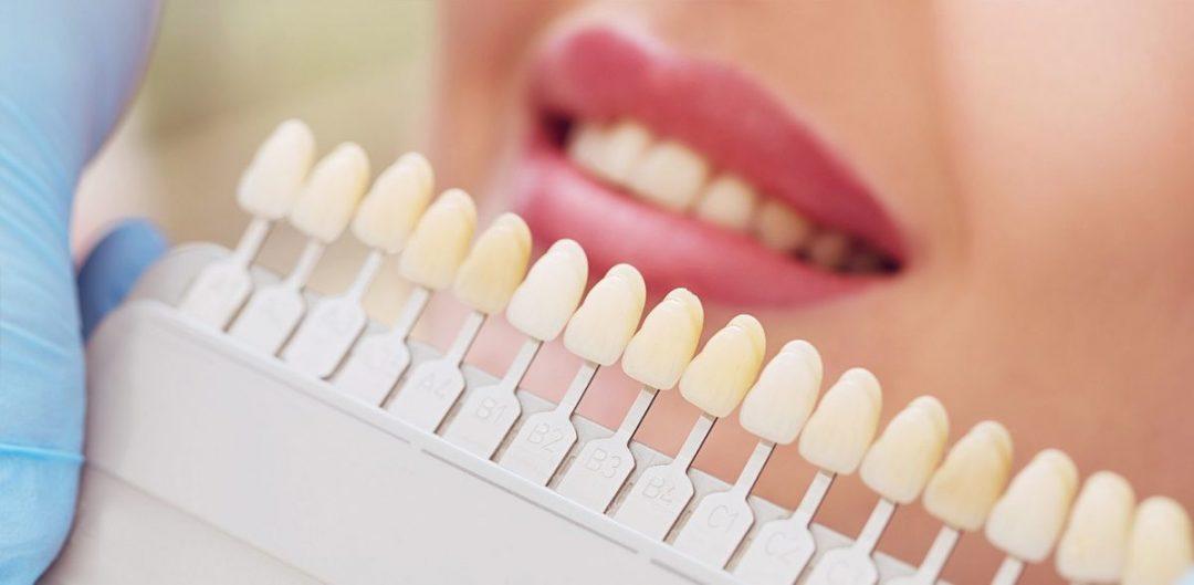 fatete-dentare  %name %Post Title